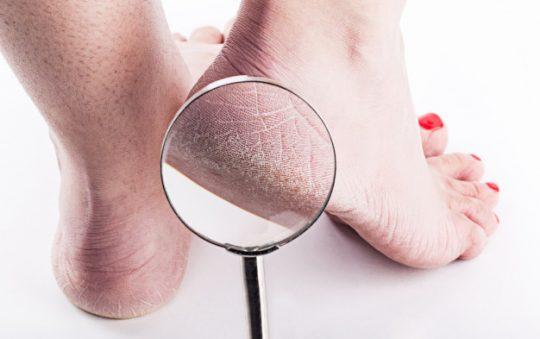 Comment éliminer les callosités des pieds ?